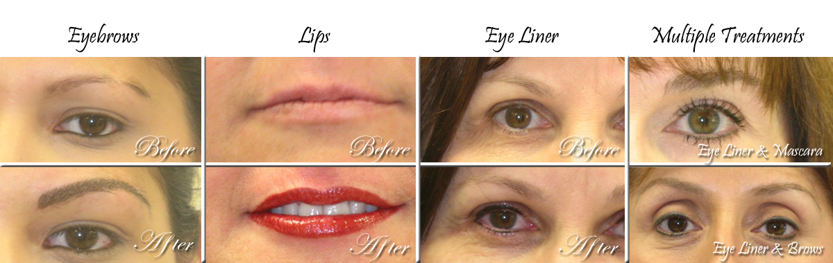 Before and After Permanent Makeup