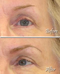 Eyebrows Example 2