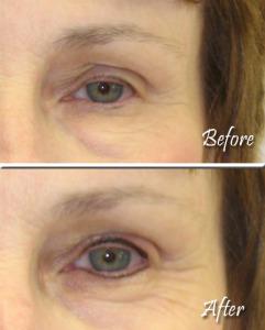 Eyeliner Example 1