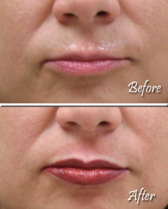 Lips Example 1