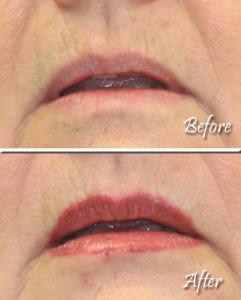 Lips Example 2