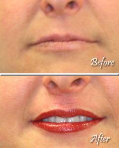Lips Example 3